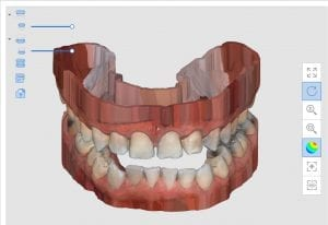 hollow model bases created by Medit i500 Intra-Oral Scanner for immediate printing