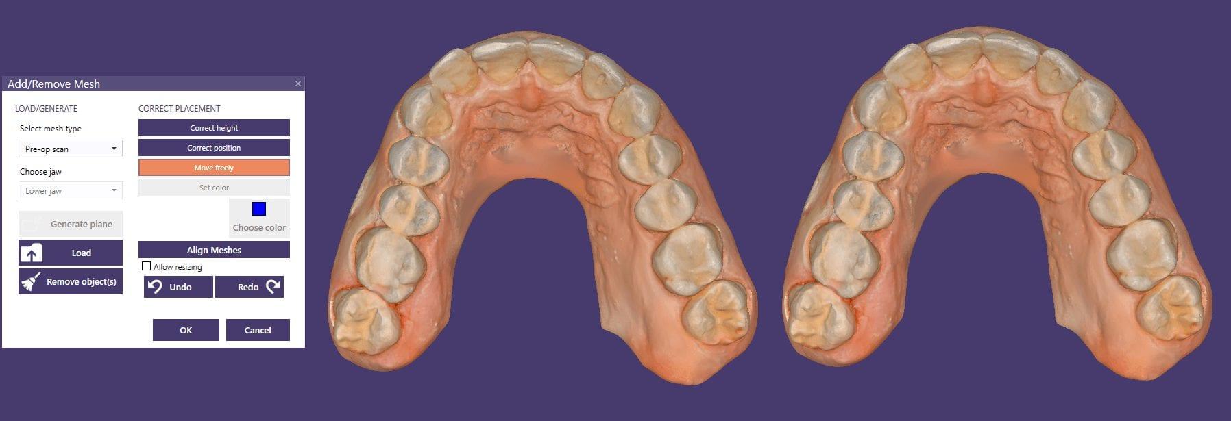 digital dental design