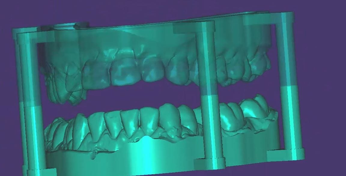 Optimizing a 3d scan for oral appliance fabrication using support pins before sending the image to the lab