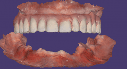 digital dental design for edentulous lower arch