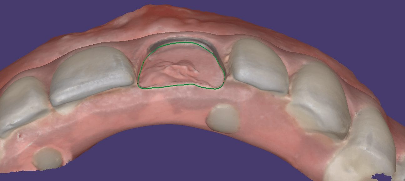 Fixing A Left Central Incisor On A Fixed Hybrid Bridge
