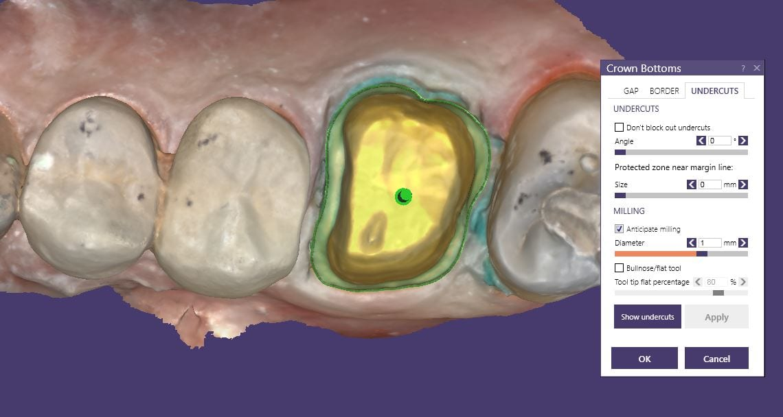 control over restoration fit of first molar with cad-ray exocad and imes icore milling