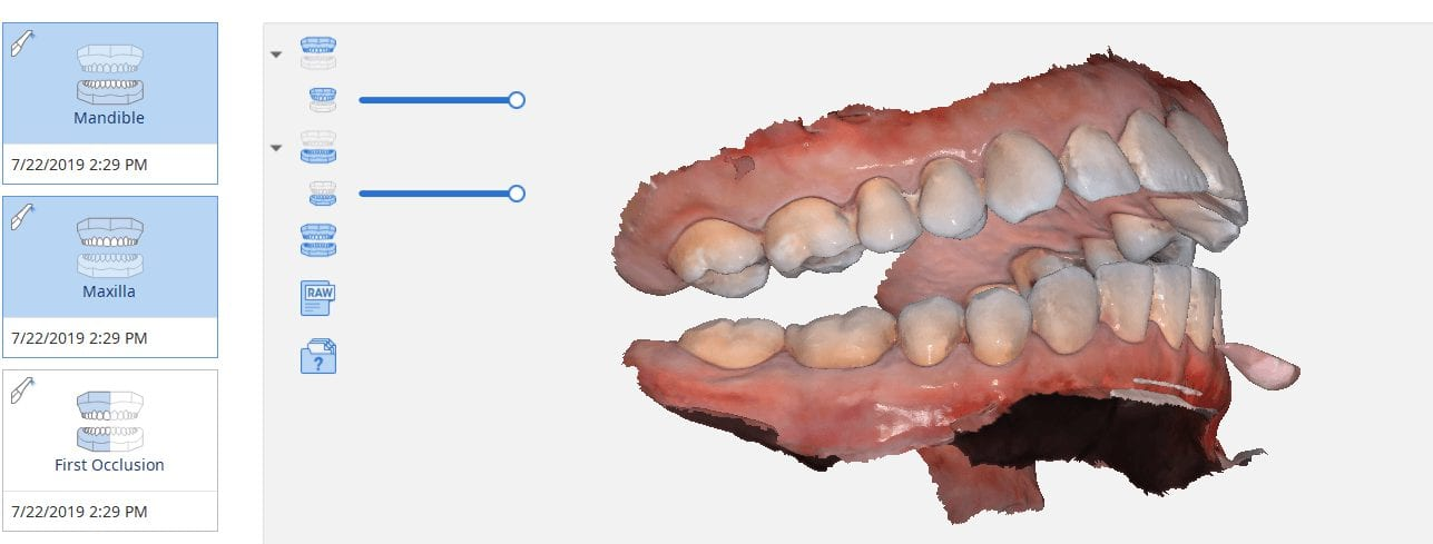 digital impressions capture open bite using own mouth as articulator