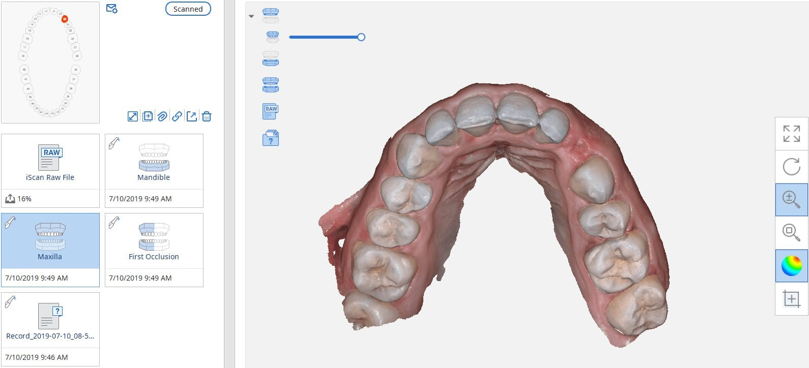 medit i500 used for implant planning in blueskybio software