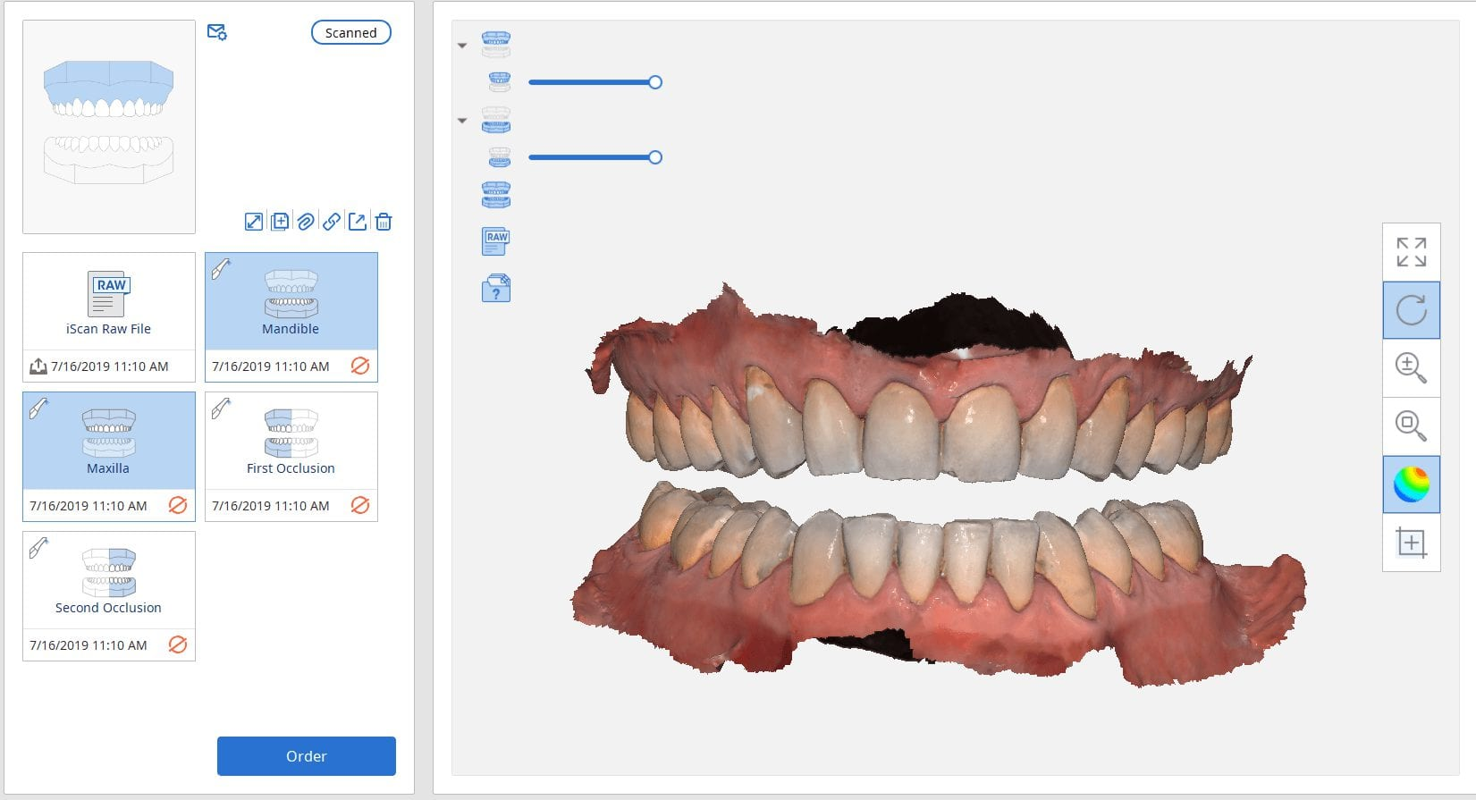 two buccal bites for occlusal guard fabrication