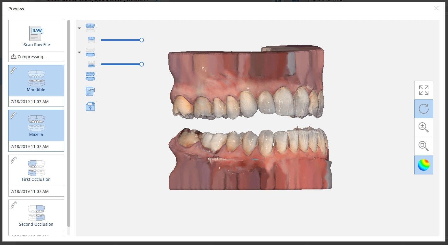 capturing multiple bites medit iscan software