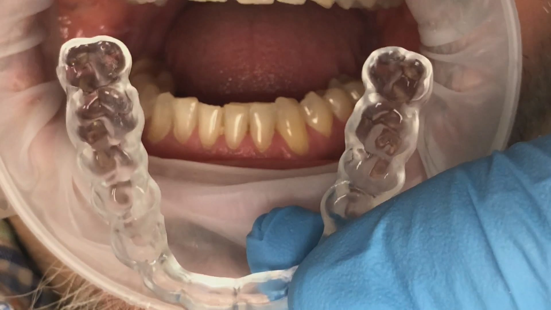 two buccal bites imaging no adjustments on occlusal guard