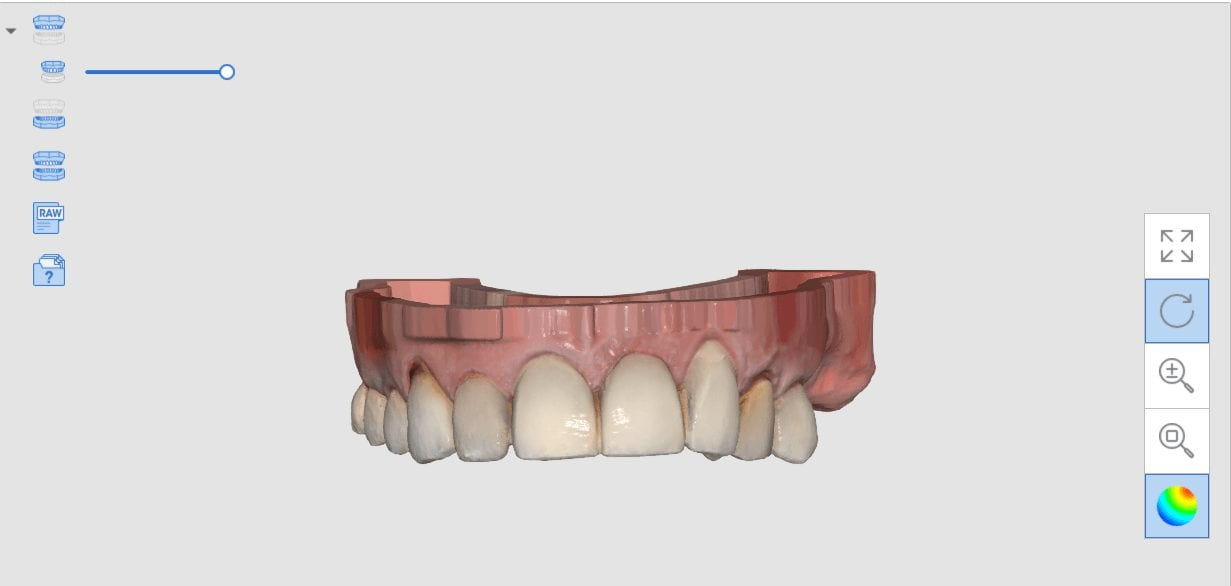 flat base that matches the occlusal plane of the arches