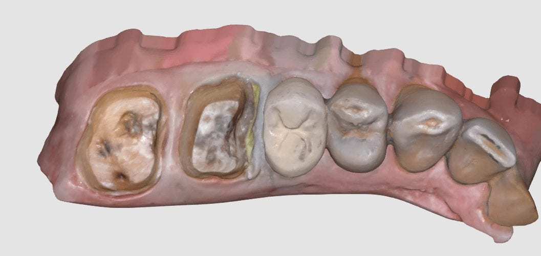 two unit molar multiple charise restorations in single visit