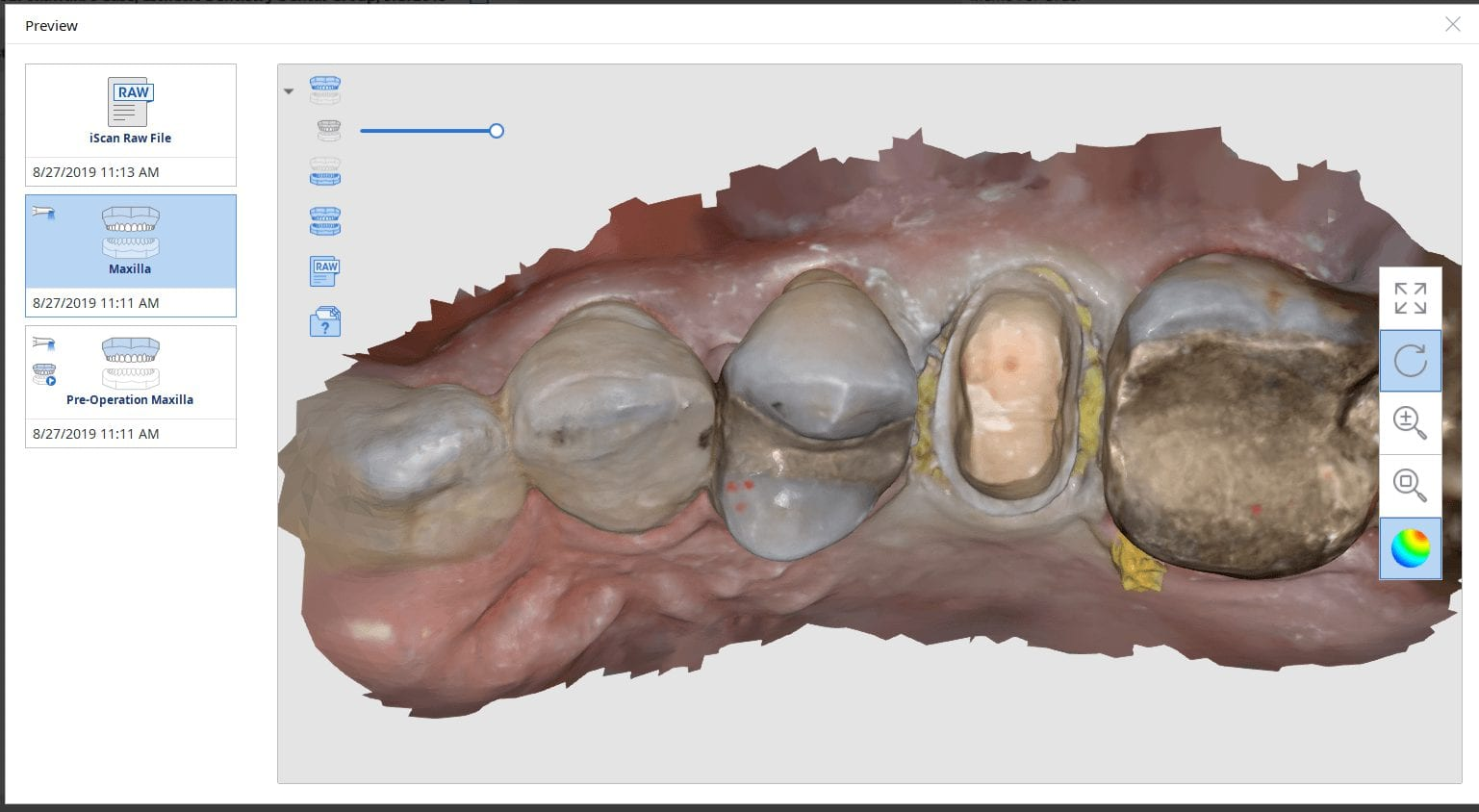 medit i500 manage crown replacement on second upper molar