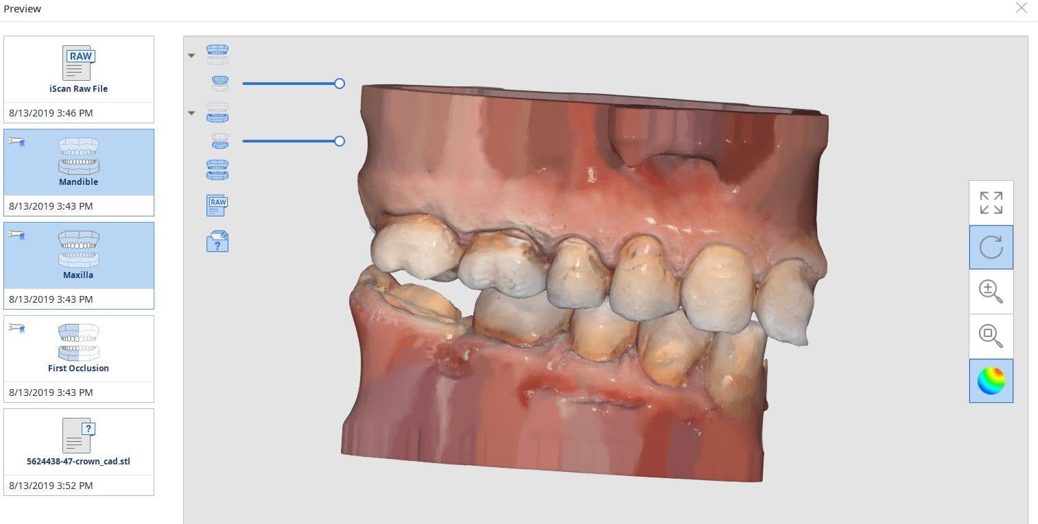 protocol to reduce surprises and post op adjustmenst second molar restoration