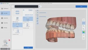 Medit i500 Intra-Oral Scanner allows for model processing with bases in native imaging software