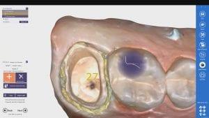margin marking with Medit i500 Intra-Oral Scanner