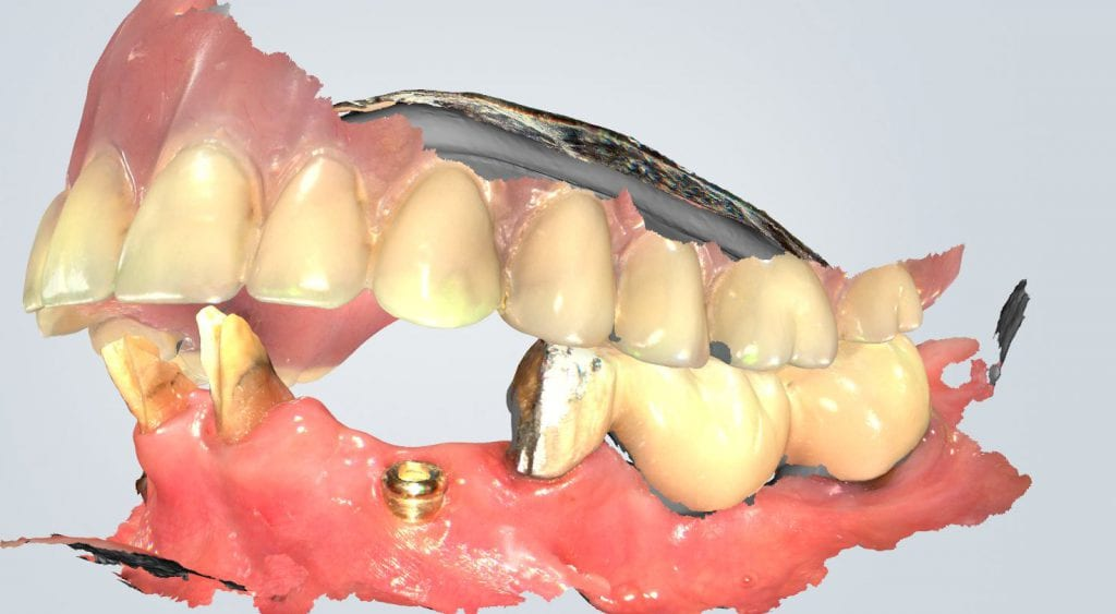 Virtual Extractions for Overdenture with Shining 3D