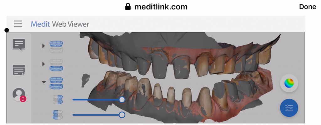 Medit User Crushes Full Arch Impressions After Watching Our Tutorials