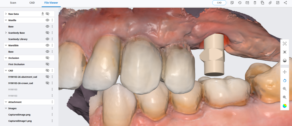 Overview of a Simple Scanbody Capture and Implant Abutment and Crown Design