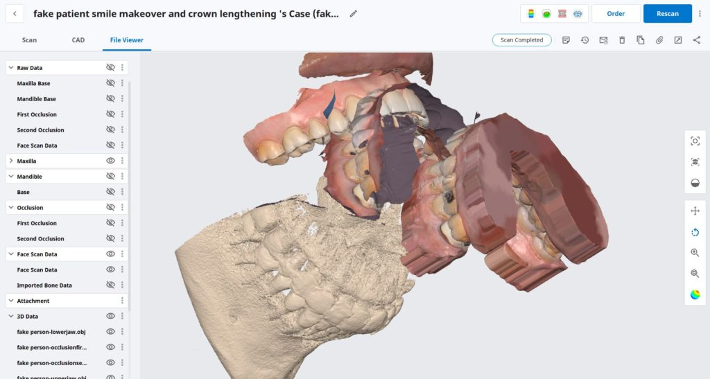 A Mix of All of the Medit Features Include Compare, Smile Design, Model Imports, CT scans, Image, Videos, etc…