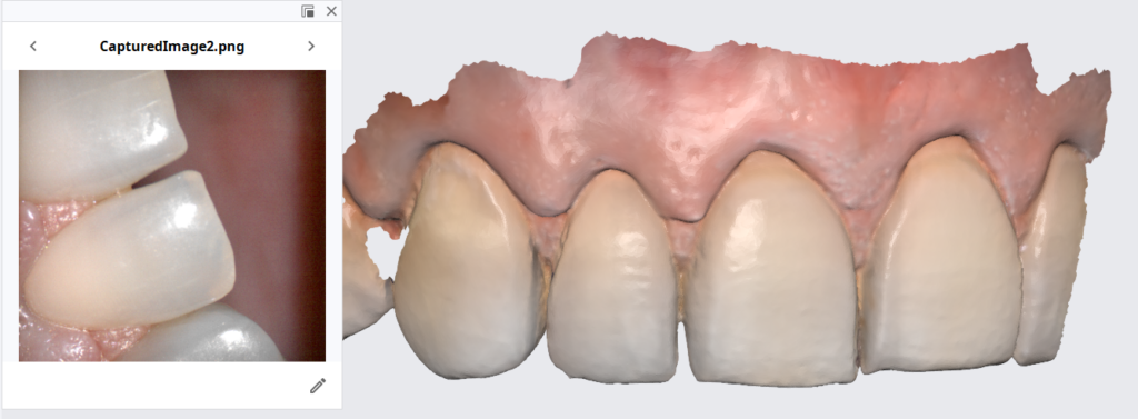Translucent Enamel Is A MotherDoctor For All Intra-Oral Scanners And Their Accuracy