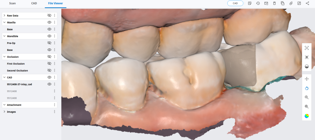 Medit i500; The Easy Entry Into Digital Impressions And CAD/CAM Restorations