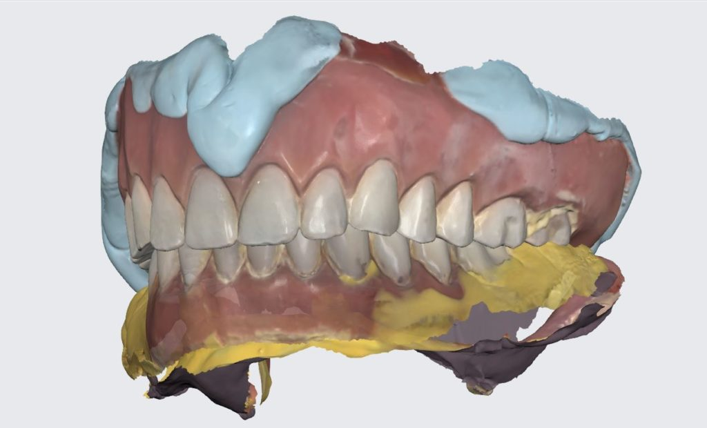 New Overdenture Fabrication from Previous Worn and Broken Overdenture by Medit IOS