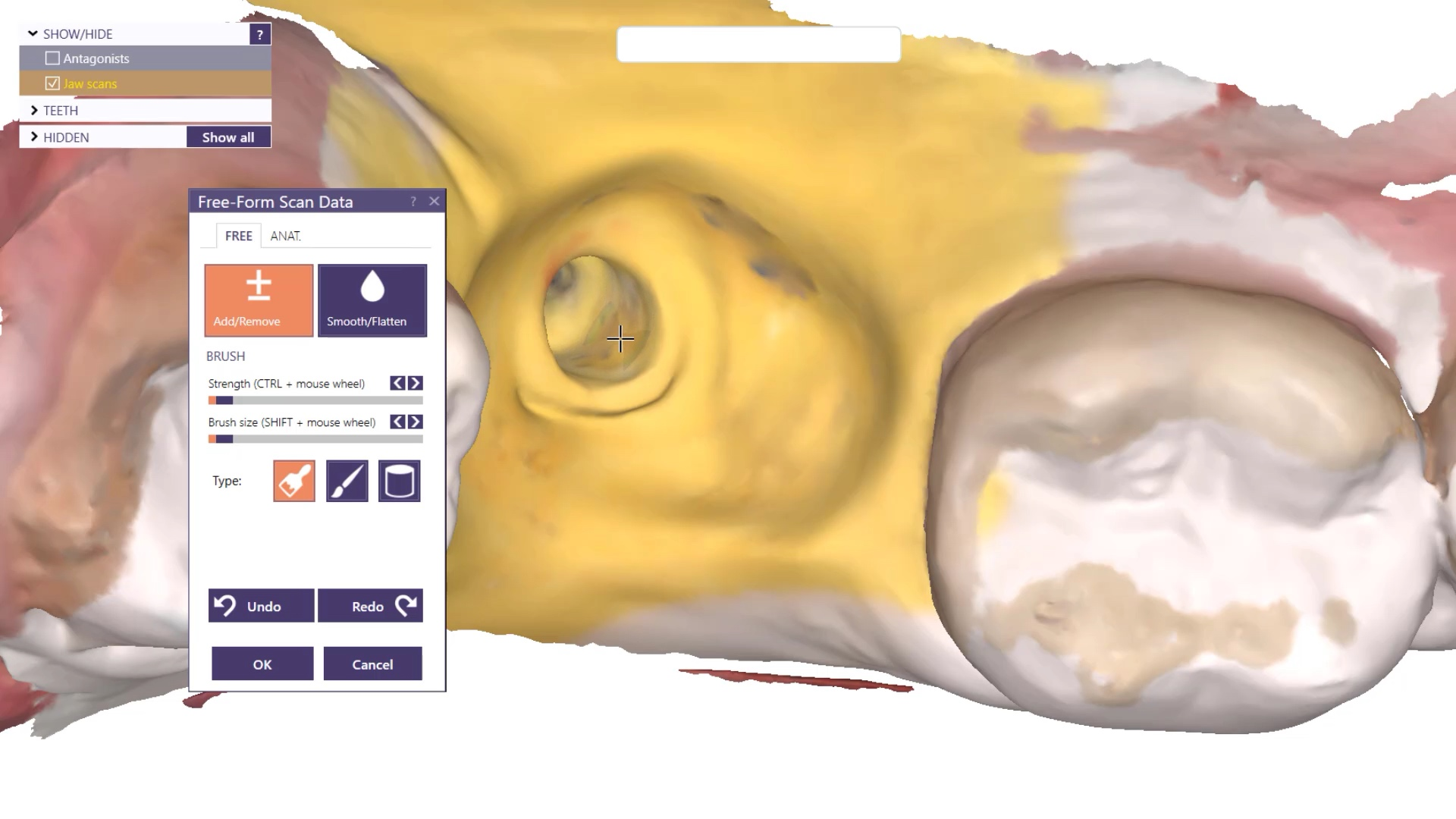 Saving an Integrated Implant by Treating it as a Cast Post and Core by Combining Medit i700 Intra-Oral Scan with a Physical Impression of fixture's Internal Shape