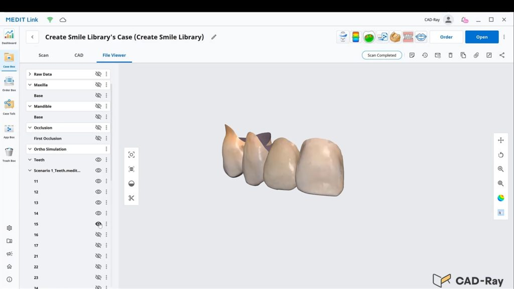 Creating Your Own Dental Morphology Library